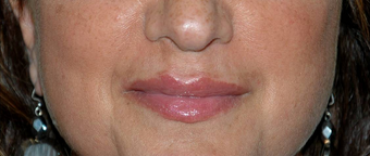 Non-surgical Lip Augmentation for Improved Contour and Definition after 896476