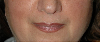 Non-surgical Lip Augmentation for Improved Contour and Definition before 896476