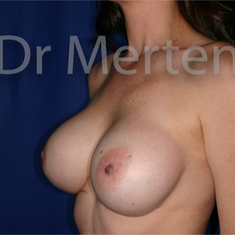 25-34 year old woman treated with Breast Implant Revision before 3830039