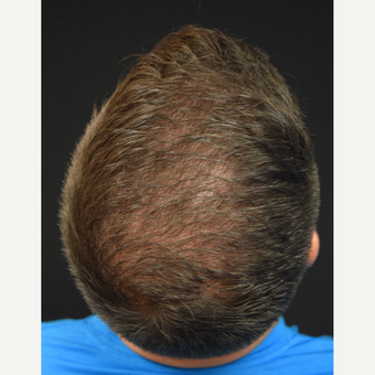 25-34 year old man treated with Hair Transplant after 3400960