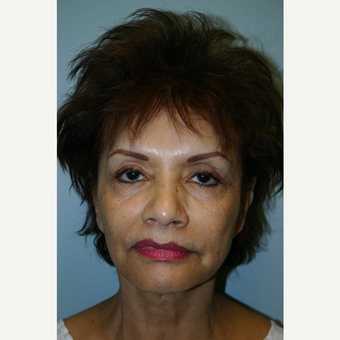 70 year old woman treated with Facelift before 3442663