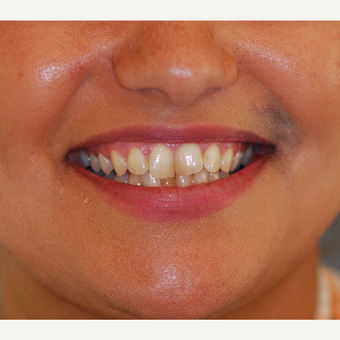 35-44 year old woman treated with Smile Makeover before 3507044