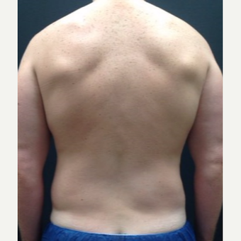 35-44 year old man treated with Liposuction before 3768874