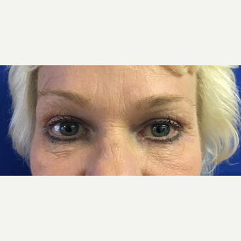 45-54 year old woman treated with Eye Bags Treatment after 2709153