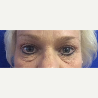 45-54 year old woman treated with Eye Bags Treatment before 2709153