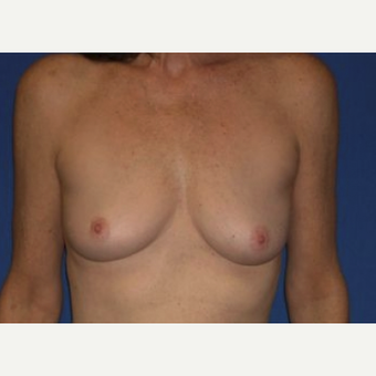 55-64 year old woman treated with Breast Augmentation before 3220028