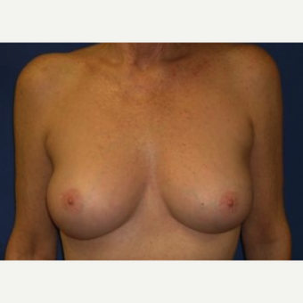 55-64 year old woman treated with Breast Augmentation after 3220028