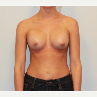 18-24 year old woman treated with Breast Augmentation after 3549659