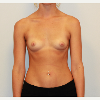 18-24 year old woman treated with Breast Augmentation before 3549659