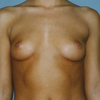 18-24 year old woman treated with Breast Augmentation before 2067296