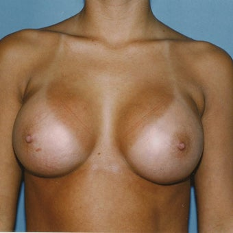 18-24 year old woman treated with Breast Augmentation after 2067296