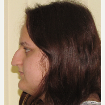 18-24 year old woman treated with Open Rhinoplasty before 2790673