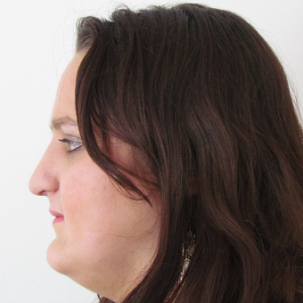 18-24 year old woman treated with Open Rhinoplasty after 2790673