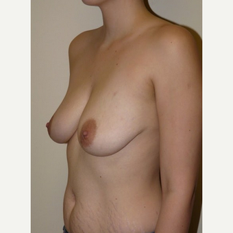 Woman treated with Breast Lift with Implants before 1773469