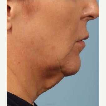 55-64 year old woman treated with Kybella before 2075875