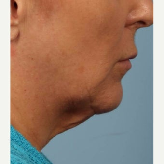 55-64 year old woman treated with Kybella after 2075875