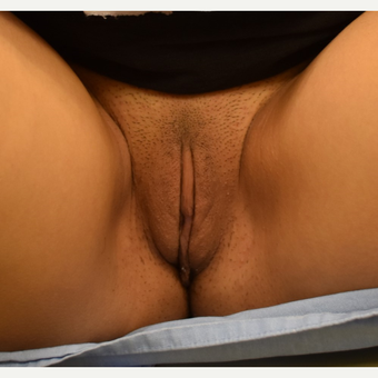 18-24 year old woman treated with Labiaplasty after 3671930