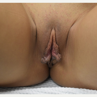 18-24 year old woman treated with Labiaplasty before 3671930