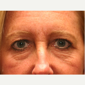 45-54 year old woman treated with Botox before 3604230
