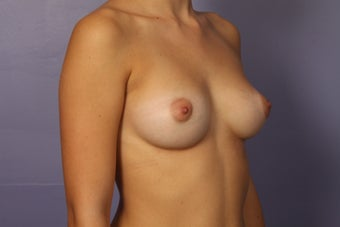 18 yr old Fat Injections into Bilateral Breasts after 998059