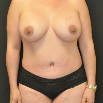 35-44 year old woman treated with Mommy Makeover after 3544158