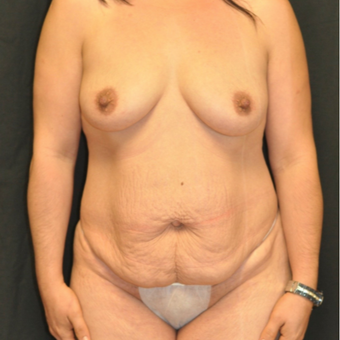 35-44 year old woman treated with Mommy Makeover before 3544158