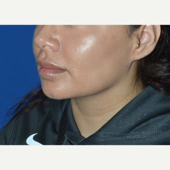 32 year old woman treated with Chin Liposuction after 2151391