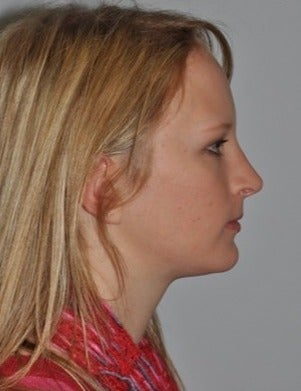 Cosmetic Chin Surgery after 1585901