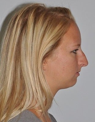 Cosmetic Chin Surgery before 1585901