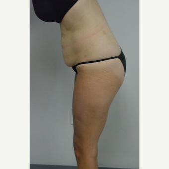 35-44 year old woman treated with Tummy Tuck and liposuction of her flanks and lower back before 3459010