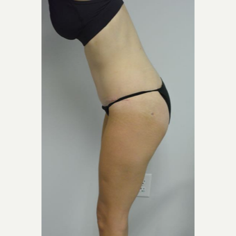 35-44 year old woman treated with Tummy Tuck and liposuction of her flanks and lower back after 3459010