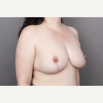 35-44 year old woman treated with Breast Lift after 2993586