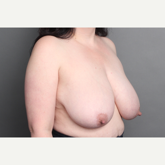 35-44 year old woman treated with Breast Lift before 2993586