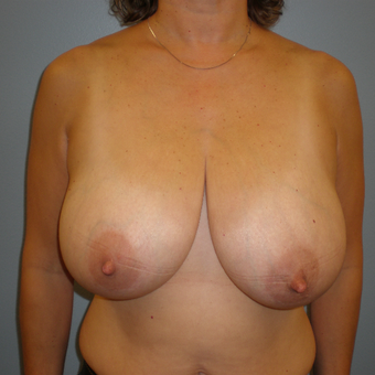 45-54 year old woman treated with Breast Reduction before 3103116