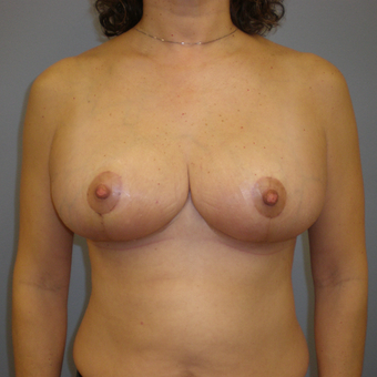 45-54 year old woman treated with Breast Reduction after 3103116