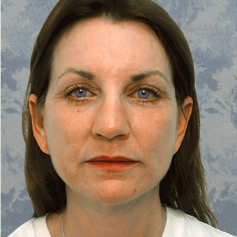 Eyelid Surgery after 3124900