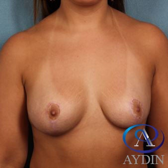 25-34 year old woman treated with Breast Augmentation before 3259739