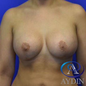 25-34 year old woman treated with Breast Augmentation after 3259739