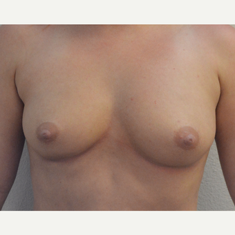 25-34 year old woman underwent Breast Augmentation with Silicone Implants before 3581512