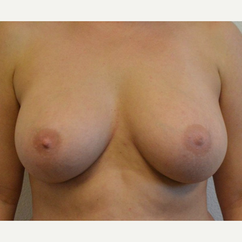 25-34 year old woman underwent Breast Augmentation with Silicone Implants after 3581512
