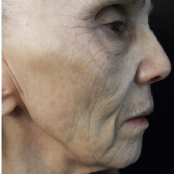 74 year old woman treated with medical micro-needling using human growth factor serums after 1611360
