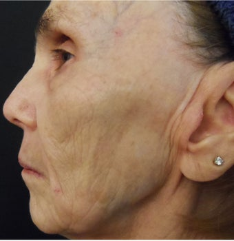 74 year old woman treated with medical micro-needling using human growth factor serums 1611360