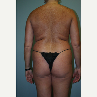35-44 year old woman treated with Brazilian Butt Lift before 3338632