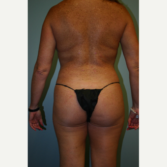35-44 year old woman treated with Brazilian Butt Lift after 3338632