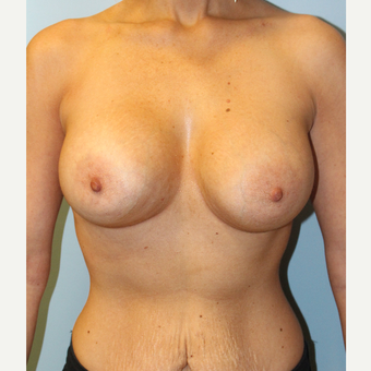 25-34 year old woman treated with Breast Augmentation after 3106670