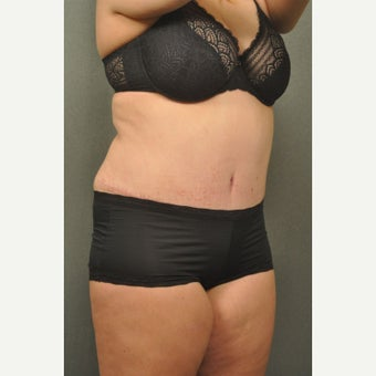 35-44 year old woman treated with Tummy Tuck after 2520141