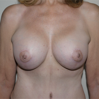 55-64 year old woman treated with Breast Lift with Implants after 3290001