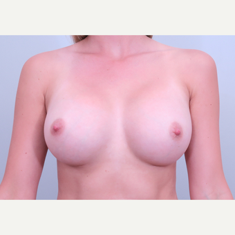 25-34 year old woman treated with Breast Augmentation after 3406525