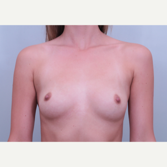 25-34 year old woman treated with Breast Augmentation before 3406525