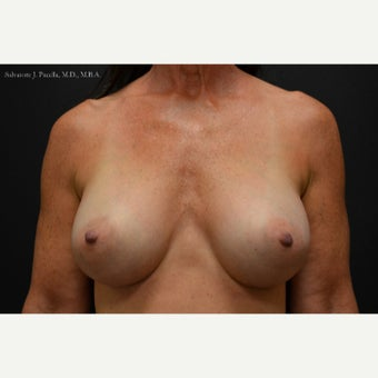 45-54 year old woman treated with Breast Augmentation & Breast Implants after 1816038